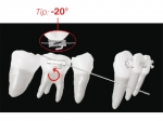 XBT - Bondable Buccal Tubes for uprighting / anchorage of 1st molar (tooth 46, 36)